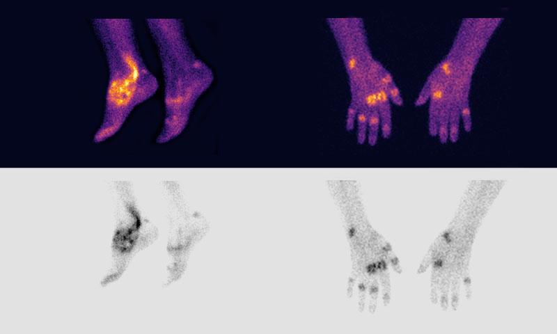 Serac Life Sciences hands feet